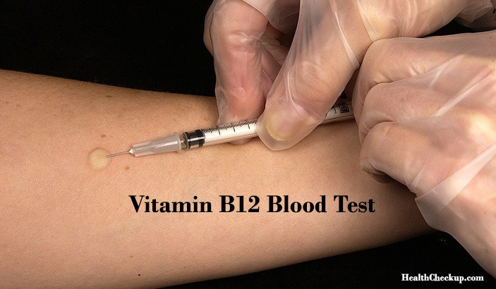 What is Vitamin B12 Test? Symptoms of B12 Deficiency and Procedure of Test