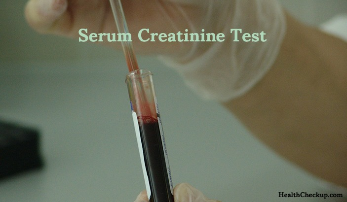 Serum Creatinine Test -procedure results and purpose