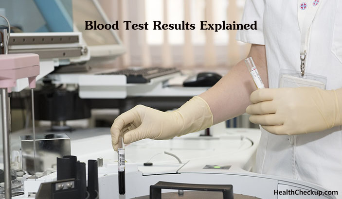 Understanding Lab Tests and Results