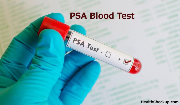 What is PSA Blood Test?  Preparation and Normal Ranges for PSA Blood Test