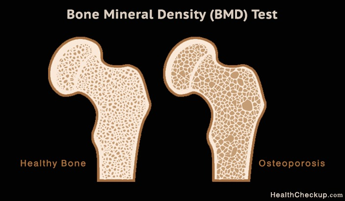 Bone Mineral Density Test for Osteoporosis and Signs, Symptoms of Osteoporosis