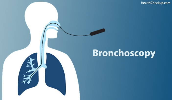 What is Bronchoscopy? Procedure & Complications of Bronchoscopy