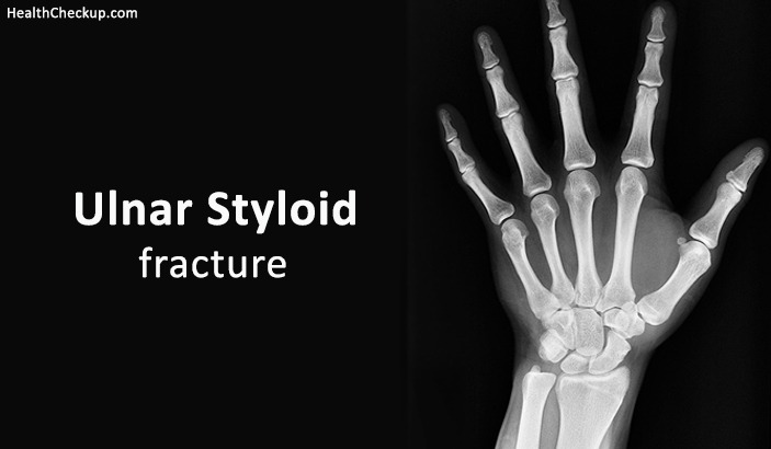 What is Ulnar Styloid Fracture – Symptoms, Causes And Treatment