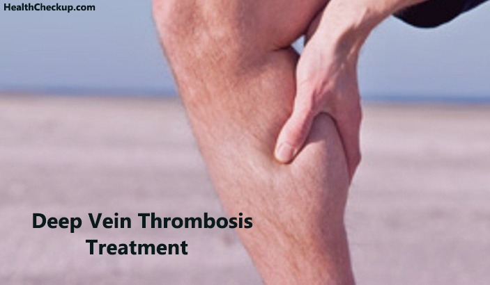 What is Deep Vein Thrombosis? Treatment, Symptoms and Risks of DVT