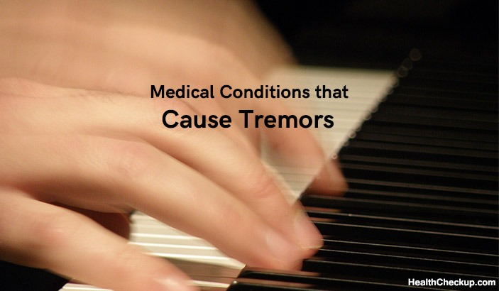 Tremors Types, Causes and Treatment