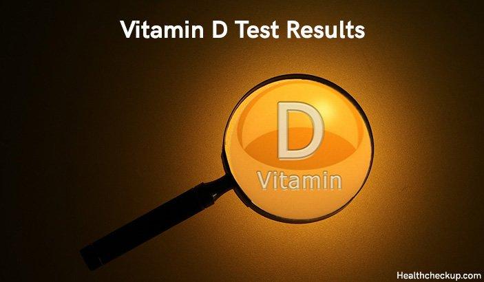Vitamin D Test Results