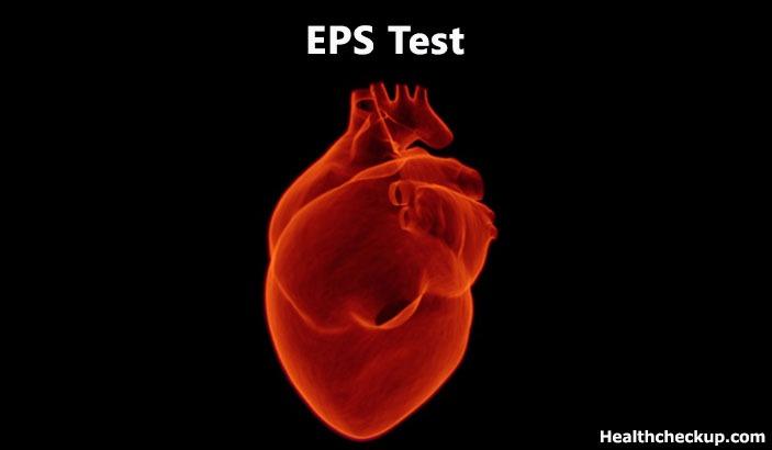Intracardiac Electrophysiology Study (EPS Test)