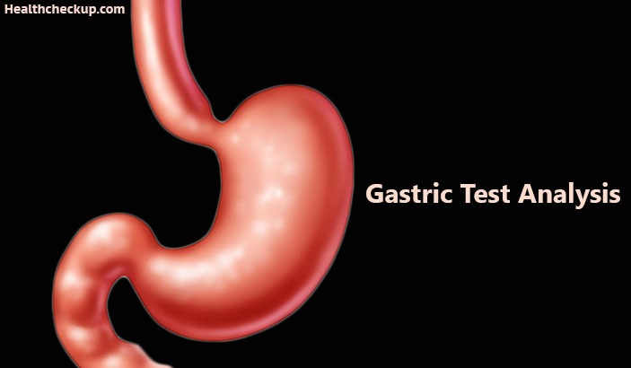 Gastric Test Analysis Preparations and Procedure