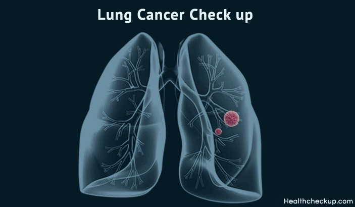 Lung Cancer Check up