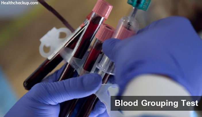Blood Grouping Test – Procedure and Principle