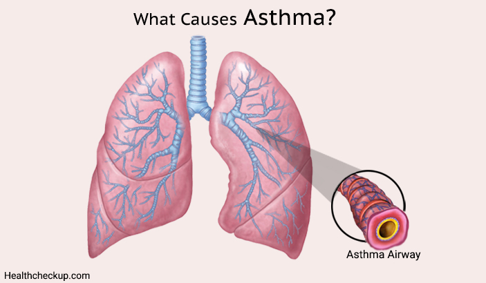 what are Asthma Causes?-types of asthama
