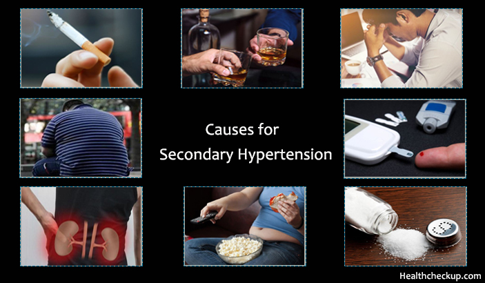Causes of Secondary Hypertension