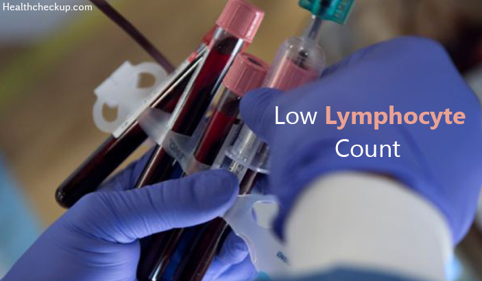 Low Lymphocyte Count: Causes, Symptoms and Normal Ranges