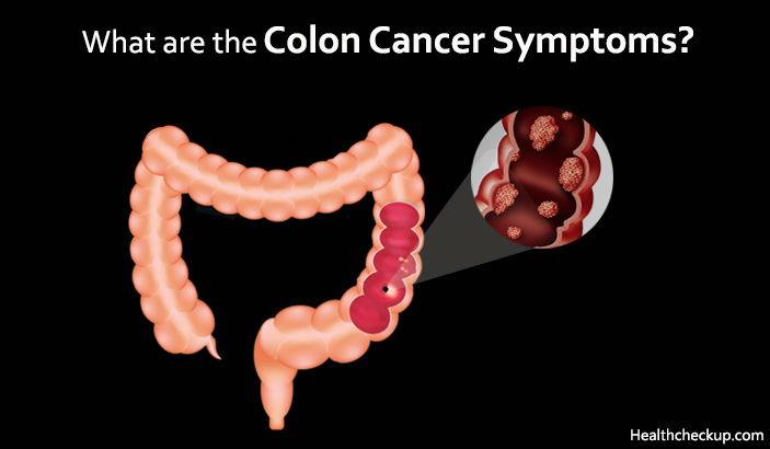 Colon Cancer Symptoms and Stages in Males, Females
