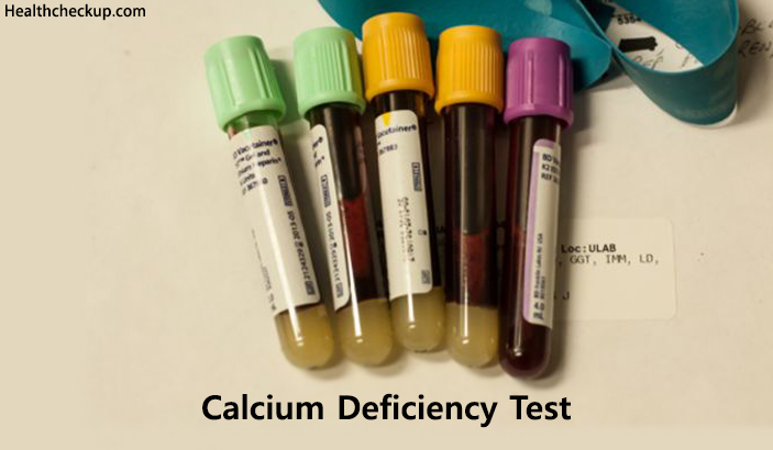 How to Check Calcium Levels in Body and Causes of Hypocalcemia