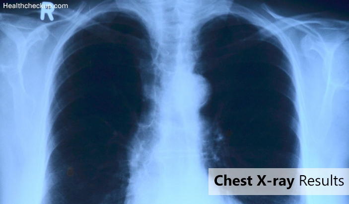 Chest X-ray Results