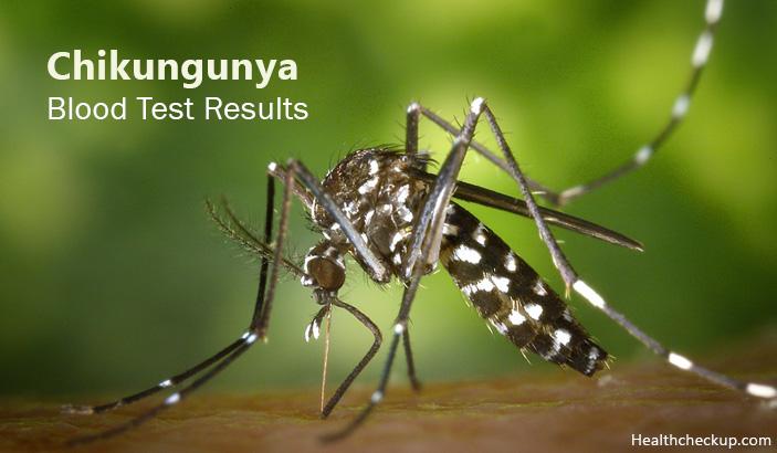 chikungunya blood test results