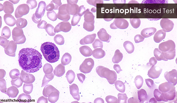 Eosinophils Blood Test: Procedure, Causes of Eosinophilia and Treatment