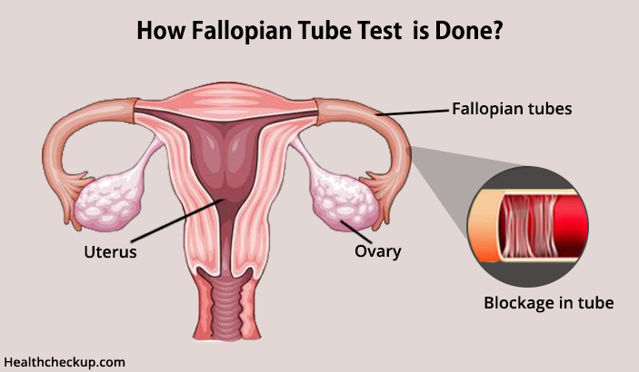 how fallopian tube test is done
