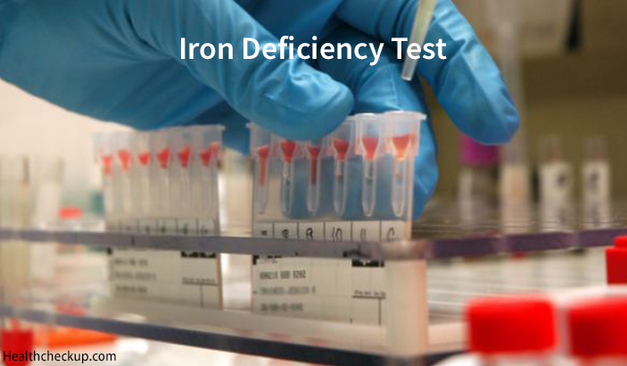 What Test is Done for Iron Deficiency? Causes and Symptoms of Iron Deficiency