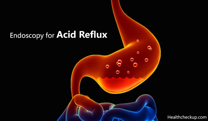 Endoscopy for Acid Reflux