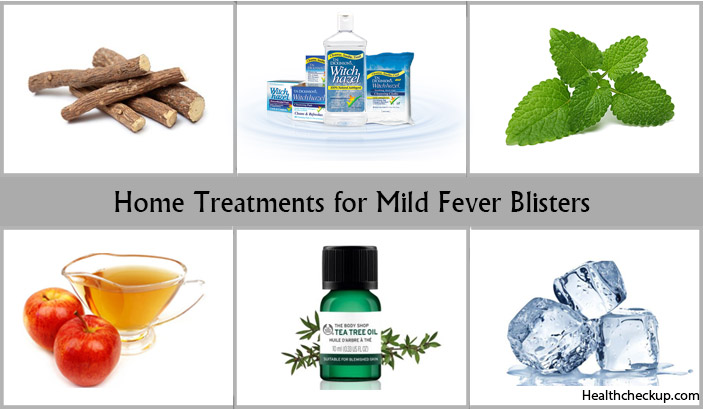Home Remedies for Fever Blisters-natural treatment