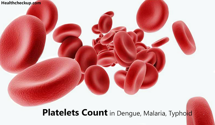 Platelets Count in Dengue Malaria Typhoid