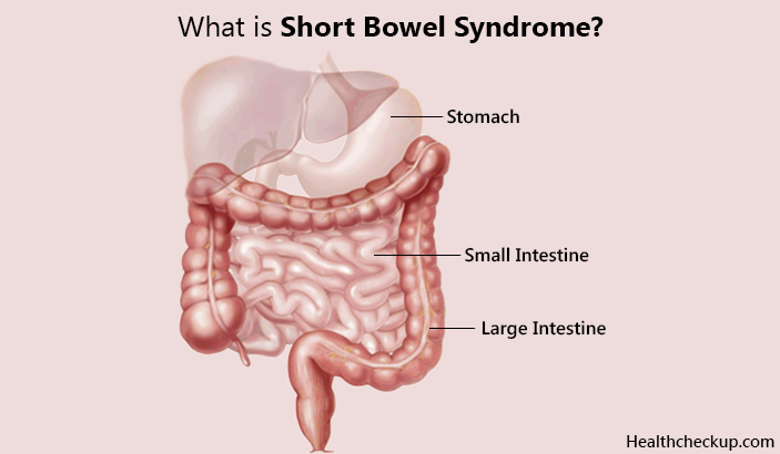 What is short bowel syndrome-symptoms and causes of sbs