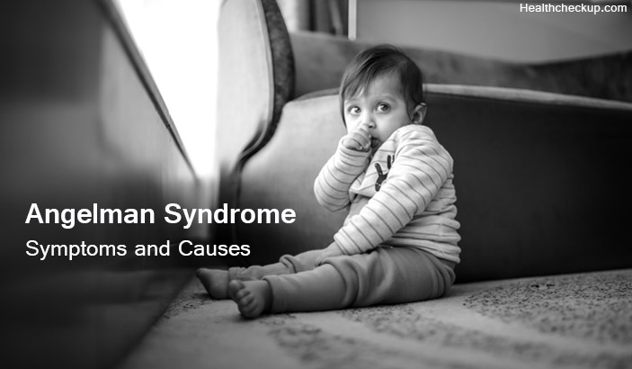Angelman Syndrome-causes and symptoms and treatment
