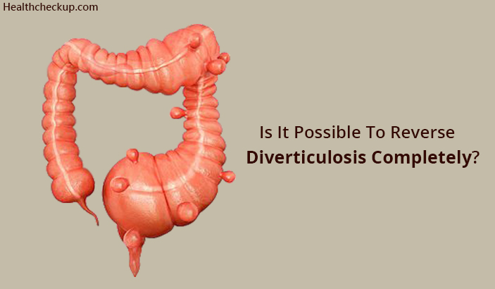 Is It Possible To Reverse Diverticulosis Completely?