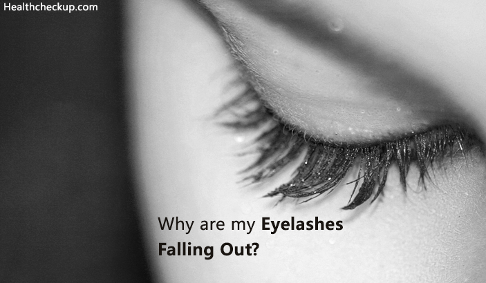 Why are My Eyelashes Falling Out | Reasons And Tips ...