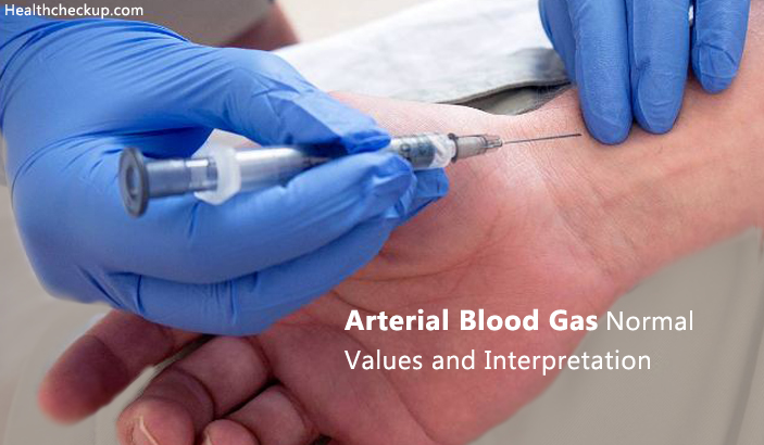 Arterial Blood Gas Normal Values And Interpretation