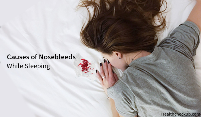 What Causes Nosebleeds While Sleeping?