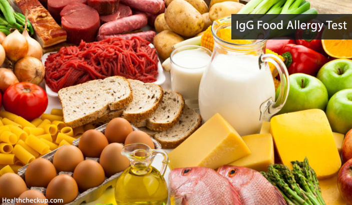 IgG food allergy test