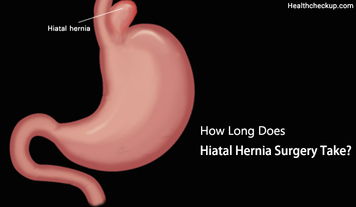 How Long Does Hiatal Hernia Surgery Take?