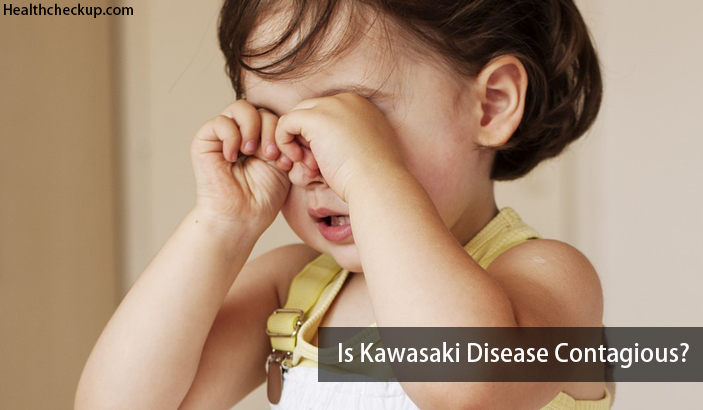 Is Kawasaki Disease Contagious? Get All Your Questions Answered Here!