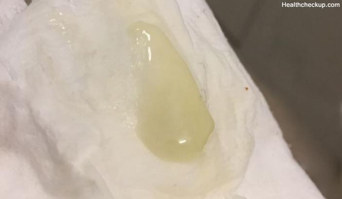mucus plug / 4yo w/ cf mucus plug  cysticfibrosis