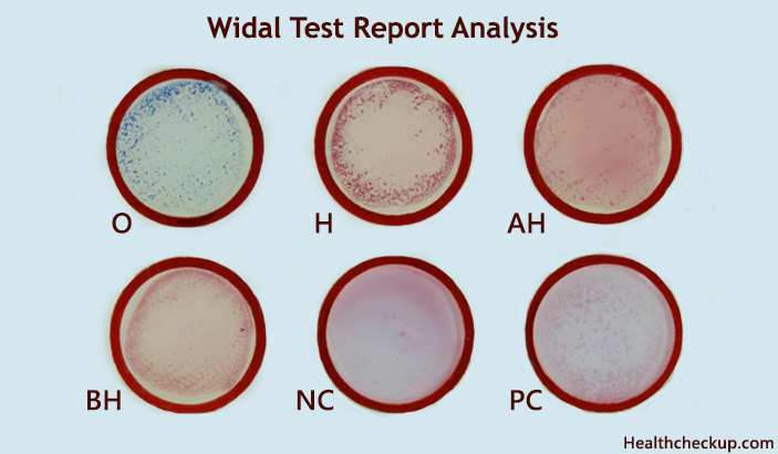 widal test report analysis
