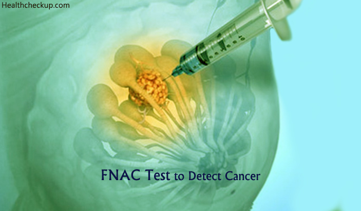 FNAC Test For Cancer (Fine Needle Aspiration Cytology)