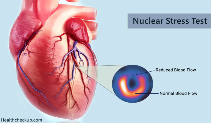 Side Effects And Precautions After Nuclear Stress Test