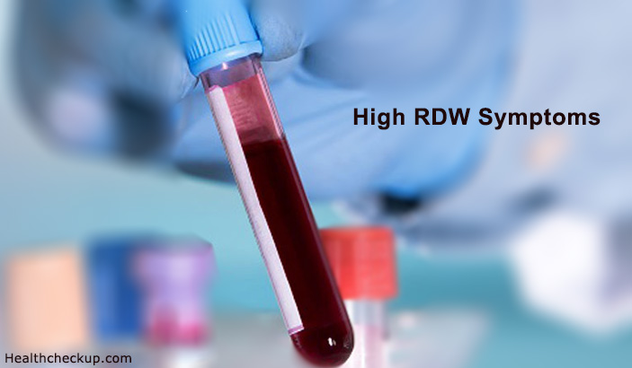 High Red Blood Cell Distribution Width(RDW) – Symptoms, Causes, Treatment