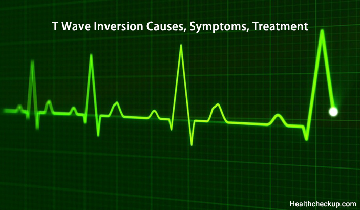 T Wave Inversion Causes, Symptoms, Treatment