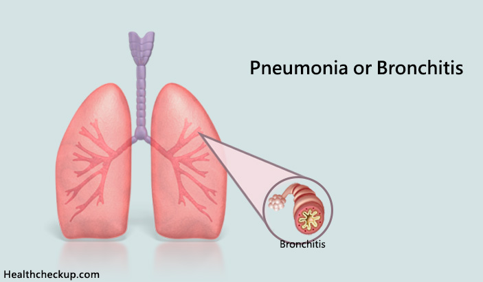 How do you know if you have Pneumonia or Bronchitis?