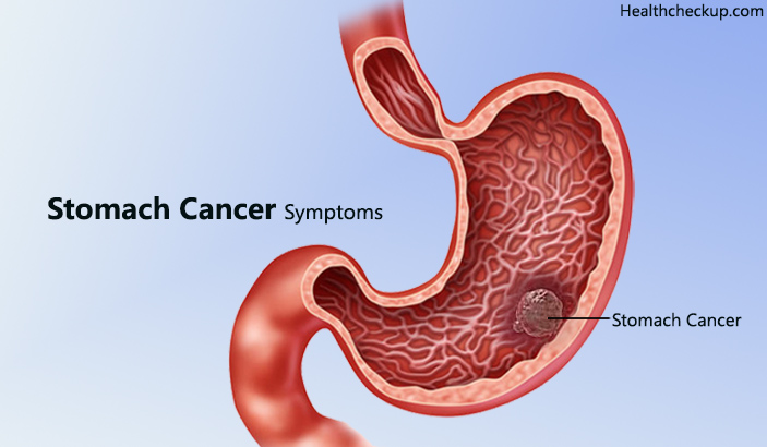 Early Signs and Symptoms of Stomach Cancer
