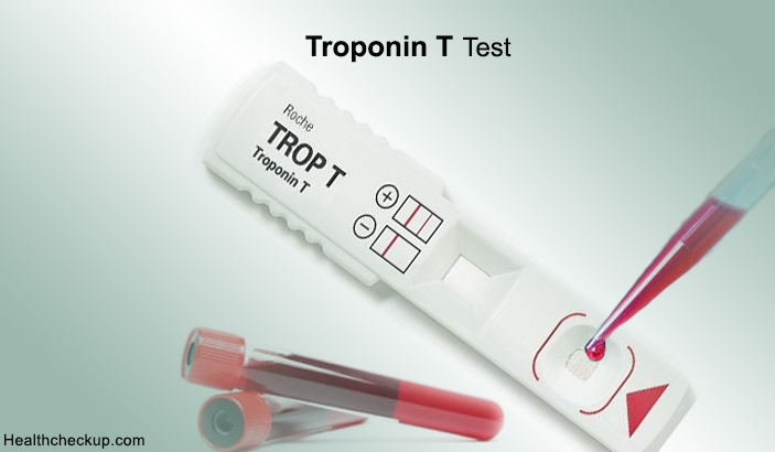 Troponin T Test – Definition, Procedure, Results Interpretation