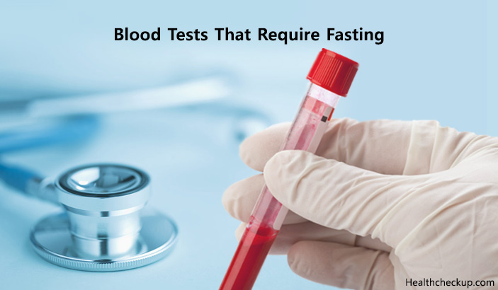 Which Blood Tests Require Fasting