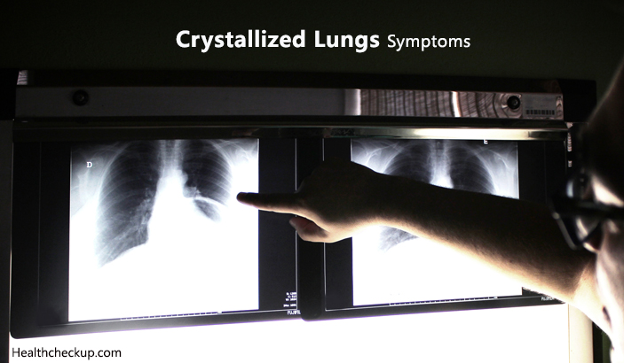 Crystallized Lungs – Symptoms, Causes and Treatment
