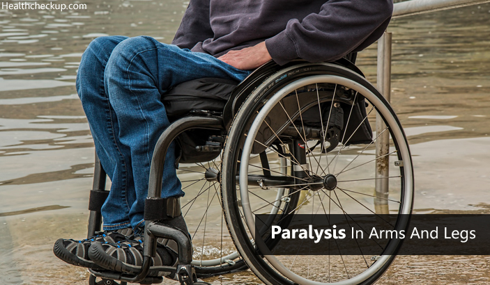 Treatment, Symptoms, Causes of Paralysis in Arms and Legs