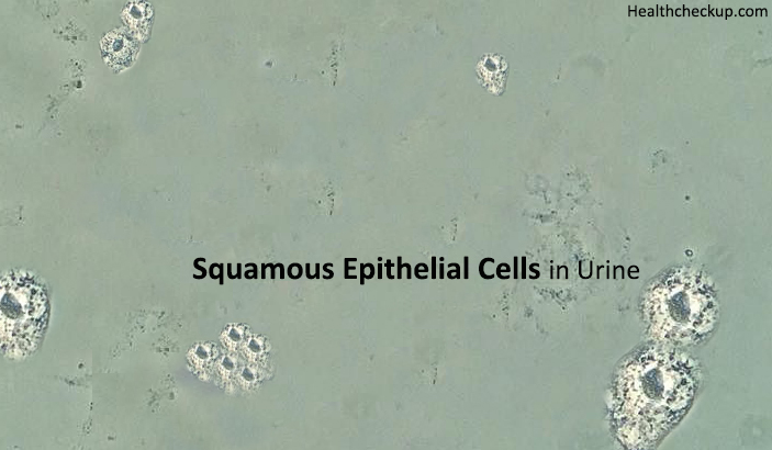 Squamous Epithelial Cells in Urine