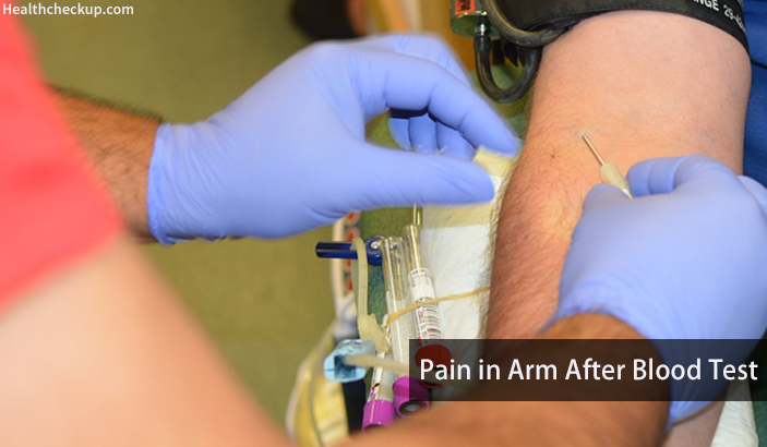 Pain in Arm after Blood Test